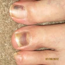 Cyanotic Nail Beds by Best Nail Discoloration Photos 2017 U2013 Blue Maize