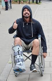 "10 Incredible ""Break A Leg"" Stories Oddee"