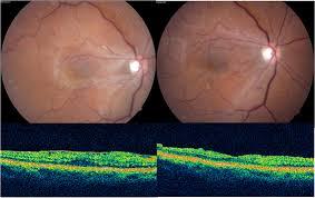 Epiretinal MembraneERM By Dr Pran Nagpal Et Al