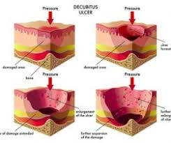 decubitus ulcers bedsores pressure sores stages and cures