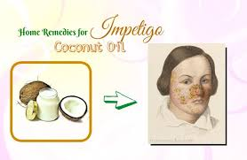 17 Natural Home Reme s For Impetigo The Face & Nose