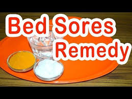 19 best bedsores images on pinterest home remedies wheelchairs