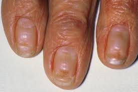 Nail abnormalities NHS UK