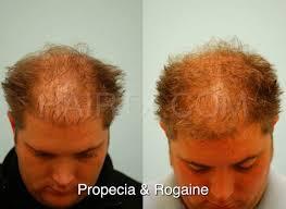 propecia finasteride dallas hair growth medicine plano tx