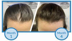 Why Am I Losing More Hair After Just Starting Hair Loss Treatment