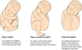 accouchement par le siege accouchement de siège éducation prénatale ontario