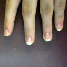 Receding Nail Bed by Growing Out Healthy Nails After Years Of Biting Thriftyfun