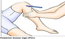 PCL tear Brisbane Knee and Shoulder Clinic