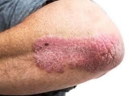 Heat Rash From Tanning Bed by Rash On Elbows And Knees Itchy Inside Both Red Rash Bumps On