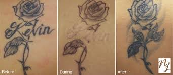 In Just A Few Sessions At New Look You Can Fade Down Your Old Tattoos To Provide Space For Masterpiece By Getting Tattoo Faded Or Partially