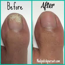 white toenail discoloration from nail polish nail ftempo
