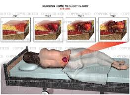 nursing home neglect injury bed sores stages medical art works