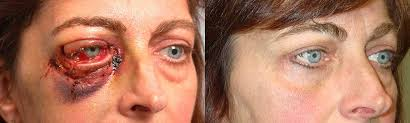 Orbital Floor Fracture Treatment by Orbital Blowout Fracture Surgery Photo Gallery Los Angeles