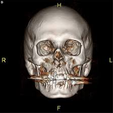 Orbital Floor Fracture Icd 9 by Defining Predictable Patterns Of Craniomaxillofacial Injury In The