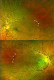 Ultra Widefield Color Images Of Preserved Fundus Reflex Surrounded By Peau