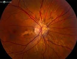 Angioid Streaks And Optic Disc Drusen In Pseudoxanthoma Elasticum