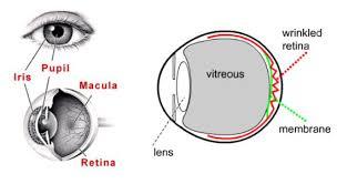 Epiretinal Membrane Surgery Durban Retinal Associates