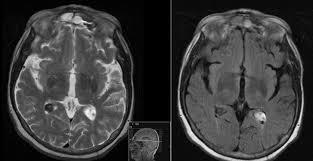 Radiology MRI Hemorrhagic Choroid Plexus Cyst