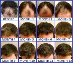 Minoxidil Shedding Phase Duration by How Long Does It Take For Hair To Grow After A Hair Transplant