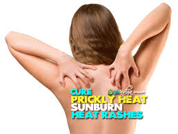 Heat Rash From Tanning Bed by 26 Natural Home Remedies For Prickly Heat Sweat Rashes Heat