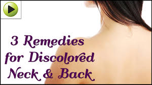 Natural Home Reme s for a Discolored Neck & Back