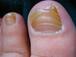 White Spots On Nail Beds the 25 best white spots on toenails ideas on pinterest black