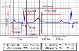 rr interval normal range image079 jpg