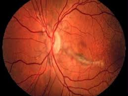 Angioid Streaks Are Gray Or Brown Lines That Radiate Out Form The Area Around Optic Nerve And Often Seen In Patients With Pseudoxanthoma Elasticum