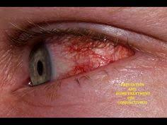 Christmas Tree Cataracts Causes by Christmas Tree Cataract Myotonic Dystrophy Eye Dots