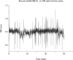 rr interval normal range rr intervals rate and hrv howto