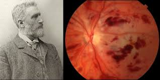 Purtschers Retinopathy Is An Example Of A Well Known Eponym In Ophthalmology 1910 Austrian Ophthalmologist Otmar Purtscher 1852 1927 Described