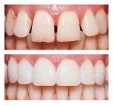 Dental Bonding in Milton Bonded Fillings Book Free Consultation