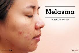 Woods Lamp Examination Melasma by Tips U0026 Advice For Melasma From Top Doctors Lybrate