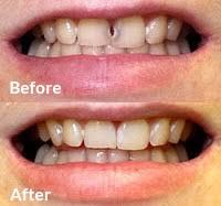 Dental Bonding in Dothan