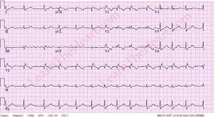 Right Bundle Branch Block ECG 7
