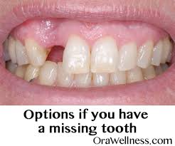 Missing teeth What are your options OraWellness