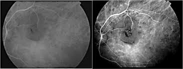 Pitfalls In The Diagnosis Of Choroidal Tumors 3 Case Reports Masses Figure 4