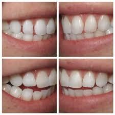 Dental Front Desk Jobs Mn by Nicollet Mall Dental Arts 14 Reviews General Dentistry 825