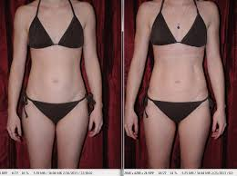 Review with before and after pictures of i Lipo Laser