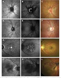Figure 2 From The Spectrum Of Ocular Alterations In Patients With