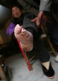 Shocking pictures of China s Bound Feet Women Village