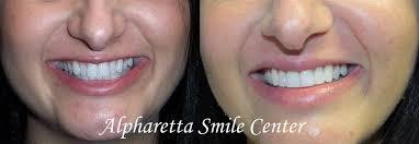 Dental Bonding Alpharetta GA Restorative Cosmetic Dental Procedure
