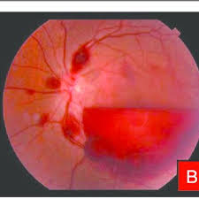 Color Fundus Photographs Of A Patient With Leukemic Retinopathy Multiple Nerve Fiber Layer