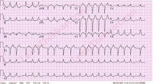Left Bundle Branch Block ECG with atrial fibrillation