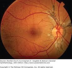 Chapter 10 Retina