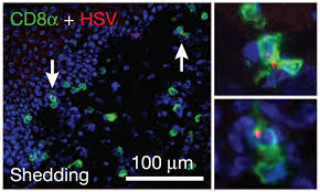 Viral Shedding Herpes Simplex by Newly Discovered Class Of Cytotoxic T Cells Suppresses Herpes