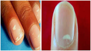 white spots on nails white spots on nails treatment how to get