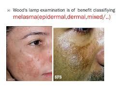Woods Lamp Examination Images by به نام خدا وند بخشنده و مهربان Dr Gita Faghihi Dermatology Assoc