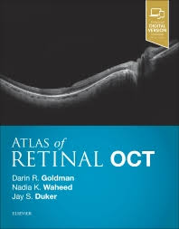 Atlas Of Retinal OCT Optical Coherence Tomography
