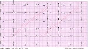 Sinus Bradycardia ECG 4